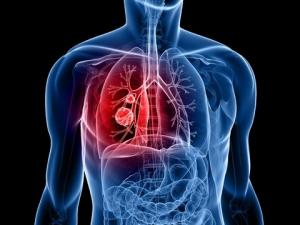 Lung Cancer Treatment at Orlando Health